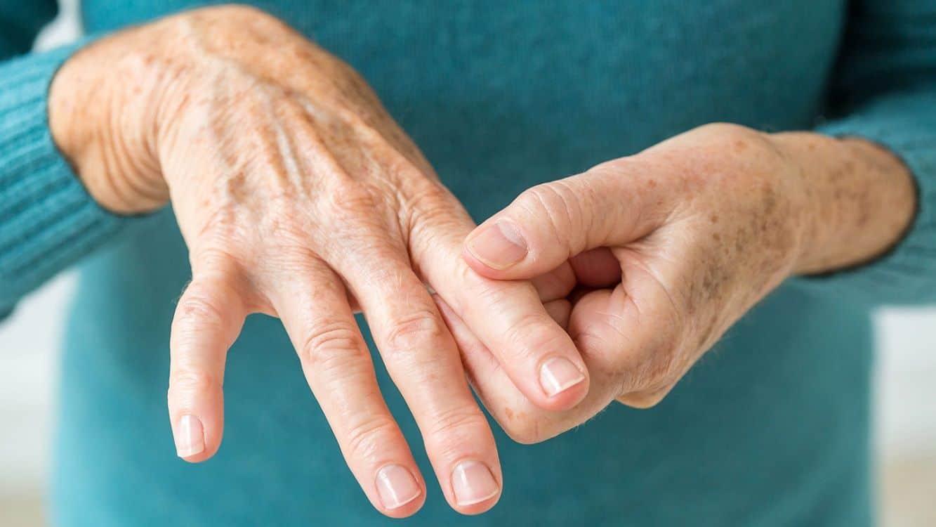 """Artritis reumatoidea: destacan la importancia de la """"escucha efectiva"""" y el """"paciente entrenado"""""""