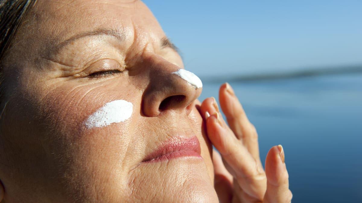 Salud brinda recomendaciones para prevenir el cáncer de piel